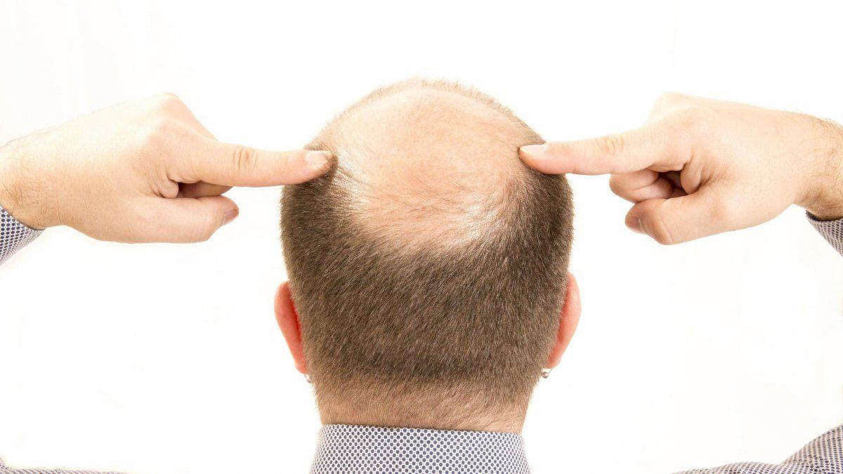 Pandemia. Afirman que los pelados serían más susceptibles a sufrir cuadros graves de Covid.
