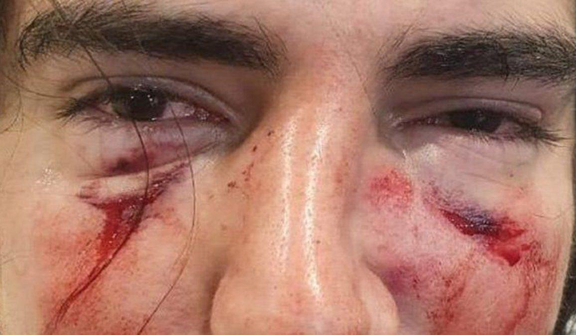 Lautaro Insúa fue brutalmente golpeado en el rostro a trompadas y patadas