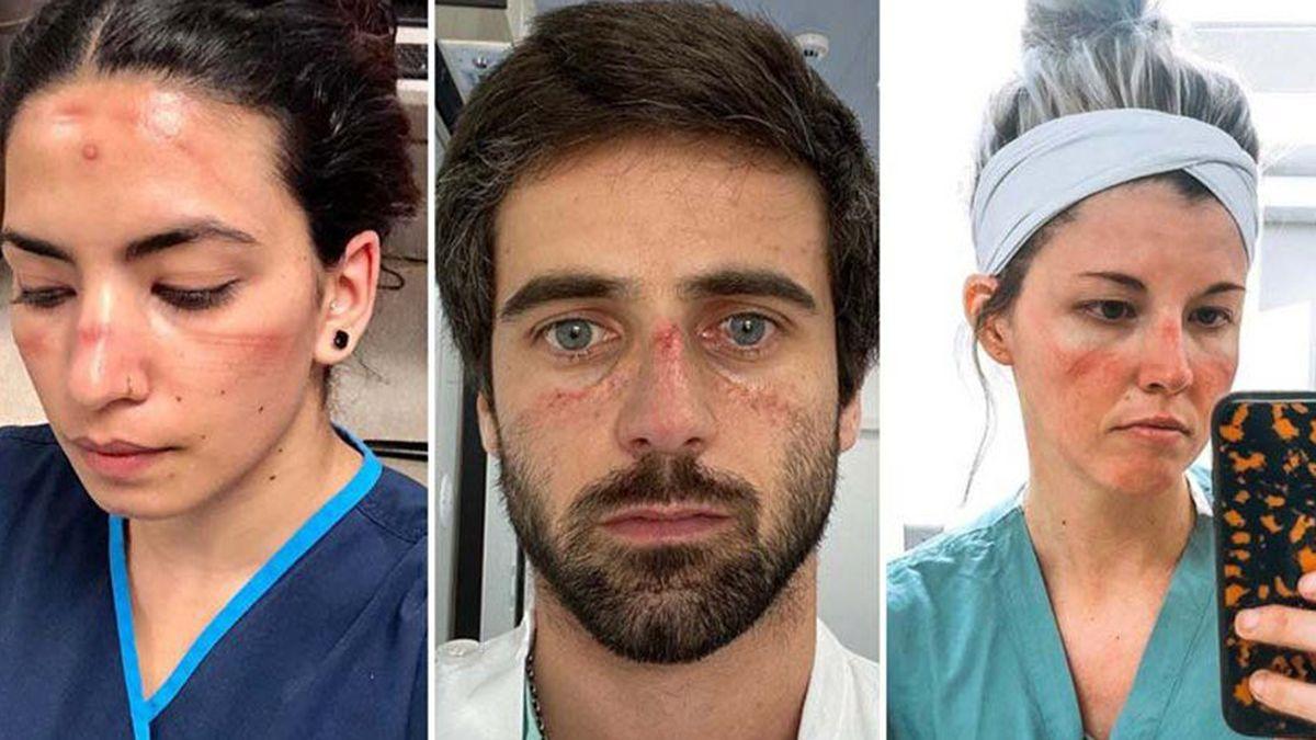 El personal médico muestra el impacto de la pandemia en sus rostros.