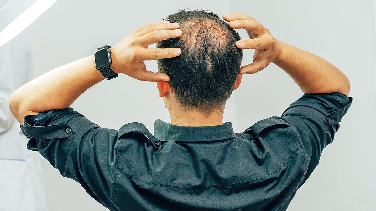 10 tips infalibles para recuperar el cabello a tiempo.