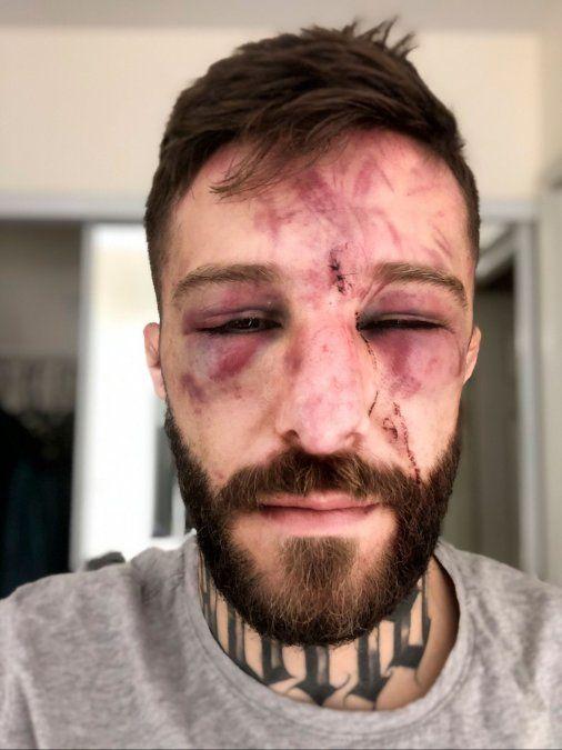 Marcelo Rojo mostró su rostro tras su sangriento debut