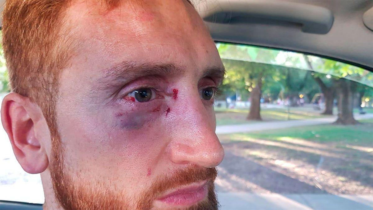 Alejandro Reinick fue agredido por hinchas en Mar del Plata