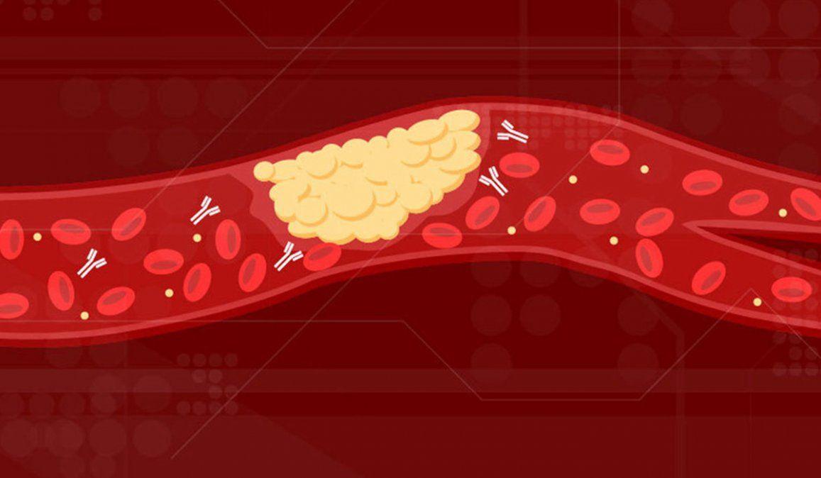 Los científicos de las universidades de Míchigan y Shanghái lograron determinar por qué se forman coágulos en pacientes con Covid-19 que pueden causar la muerte