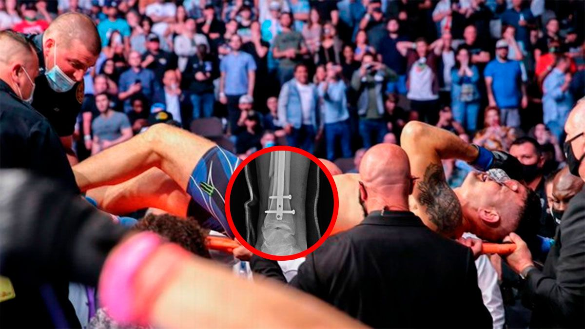 Chris Weidman mostró su pierna tras la durísima fractura