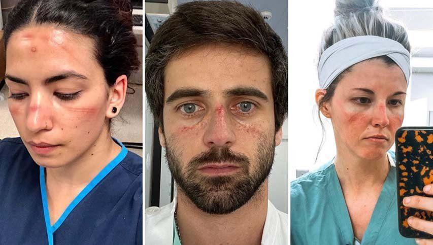 Coronavirus: médicos y enfermeros muestran los efectos de usar máscaras