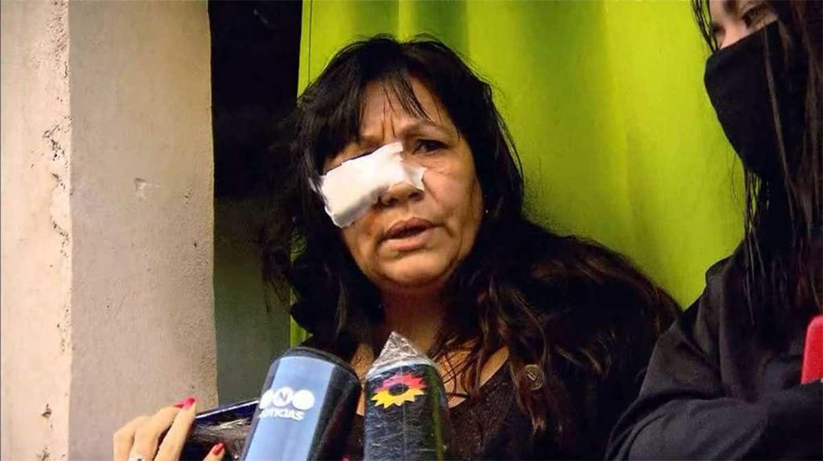 En el barrio porteño de Villa Lugano una mujer denunció ser apuñalada en la cara como represalia por haber denunciado a los narcos que venden en esa zona.