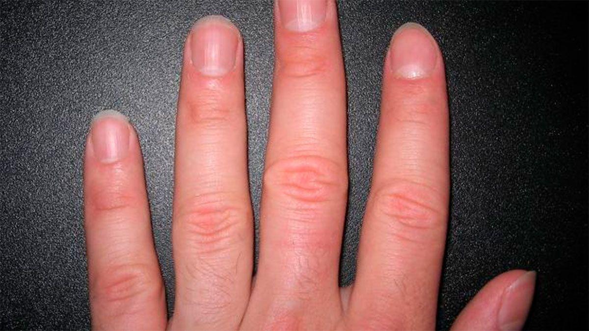 Covid: las uñas puede revelar si tuviste la enfermedad