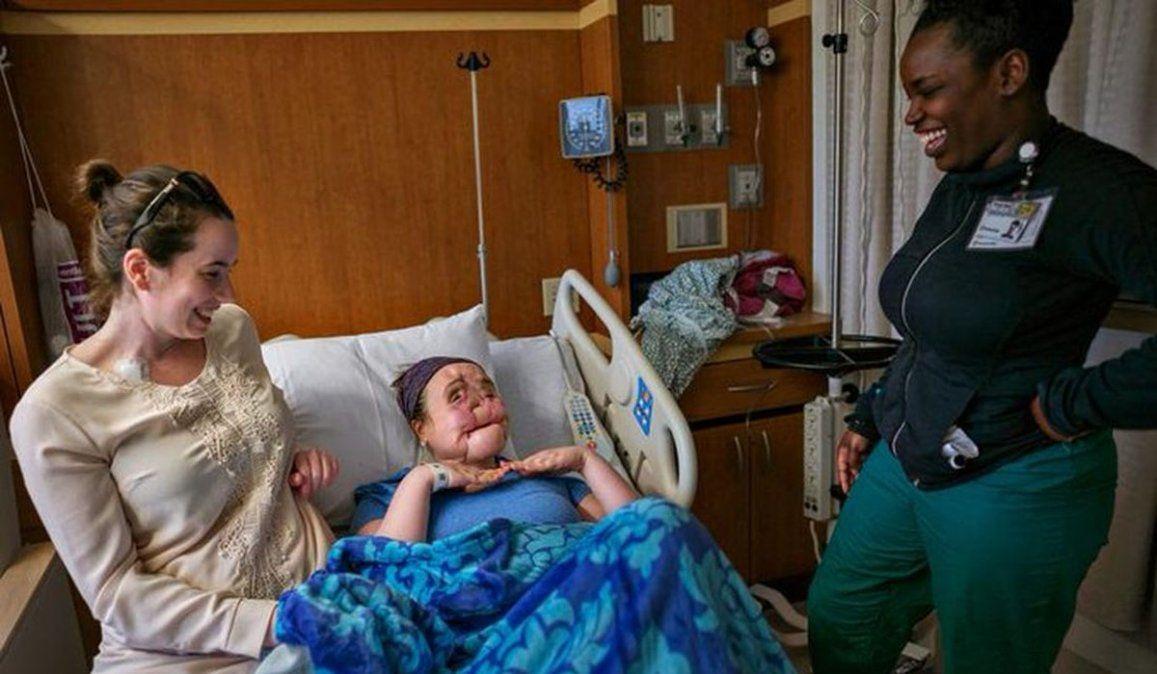 La historia de Katie Stubblefield: se disparó en la cara y un trasplante le dio una segunda oportunidad de vida