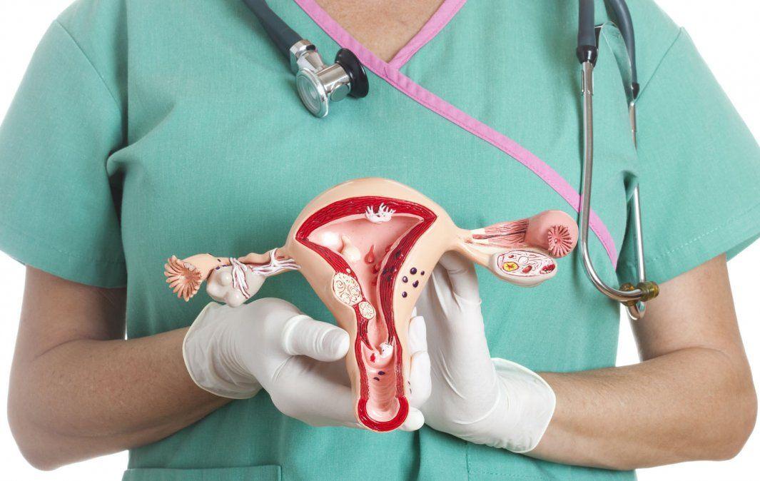 Cáncer de útero: cuáles son los síntomas y cómo se previene
