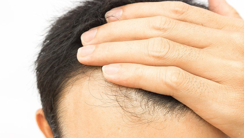Finasteride, la droga que dejó atrás la caída del cabello