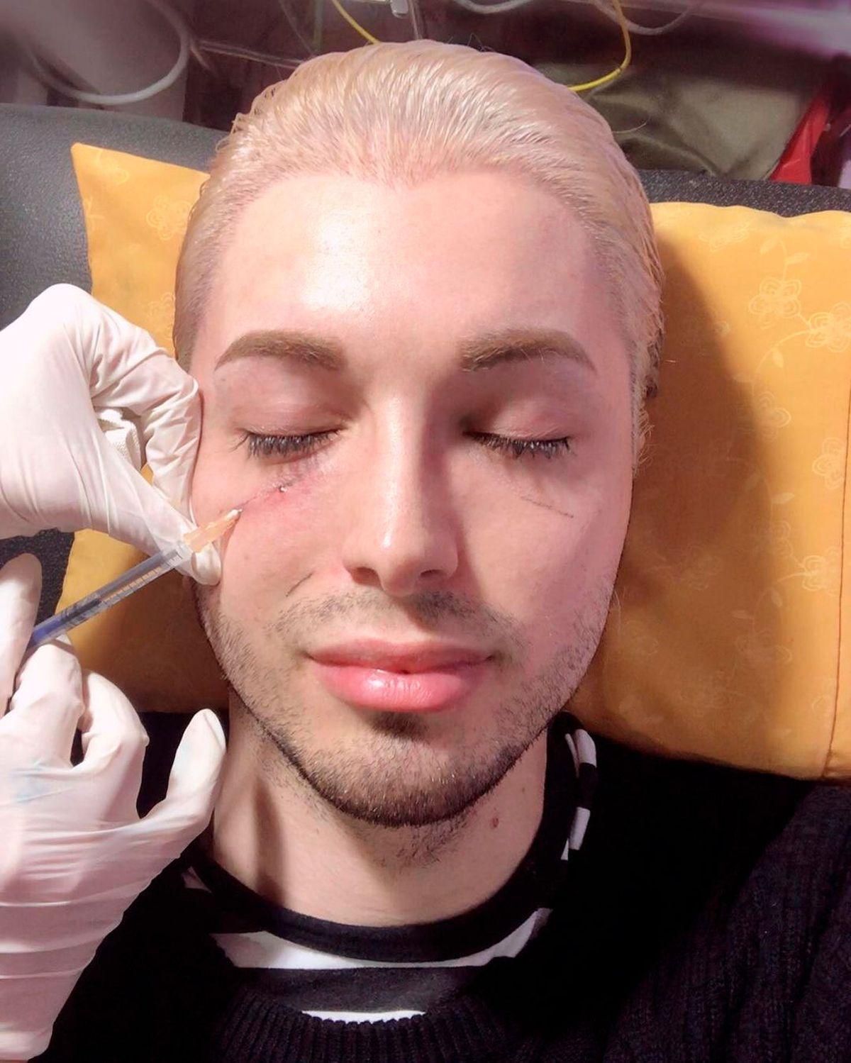 Un argentino gastó miles de dólares para parecerse a un elfo