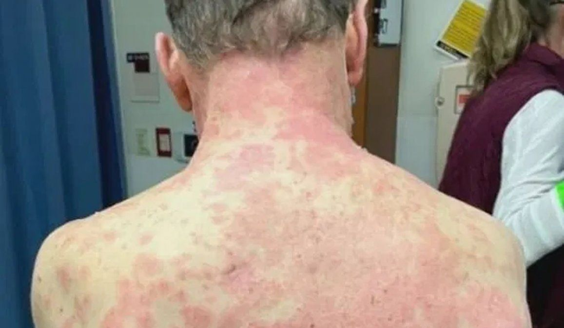 Se le despegó la piel por un efecto raro de la vacuna Johnson & Johnson