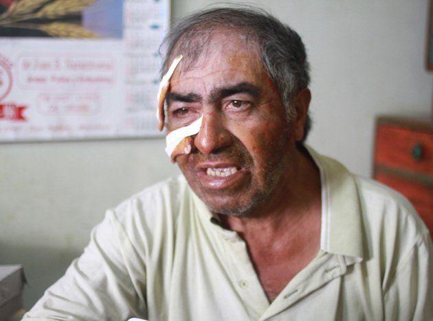 Asaltaron y golpearon brutalmente a un canillita de 62 años en su casa