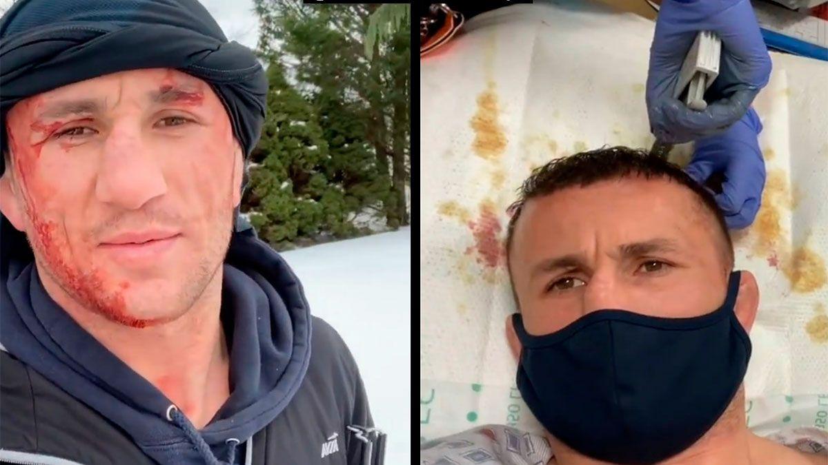 Una estrella de la UFC se tiró de cabeza a un lago congelado