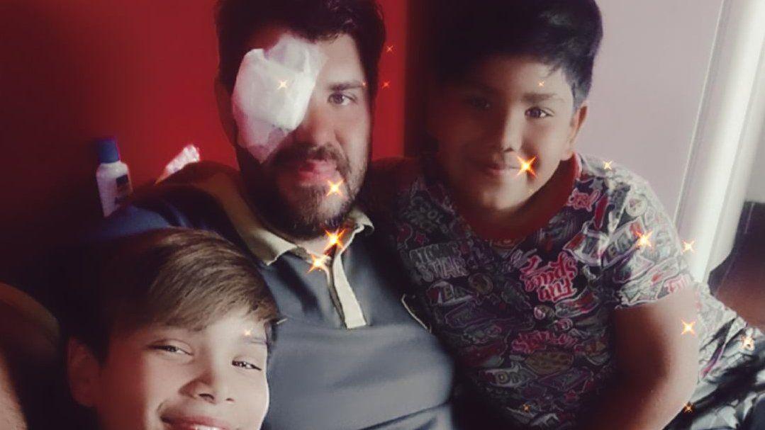 Durante la cuarentena cerró el hotel en el que trabajaba y perdió un ojo en un accidente con una herramienta. Se ha formado una cadena solidaria para ayudar a Julián Marcozzi