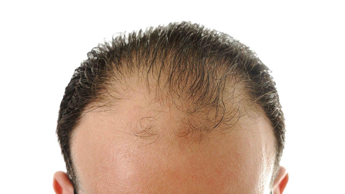 Frená la caída del pelo con estos 10 consejos